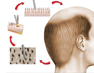 fue-hair-transplant-190px.png